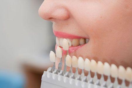 woman color matching her dental veneers in Winter Park, FL